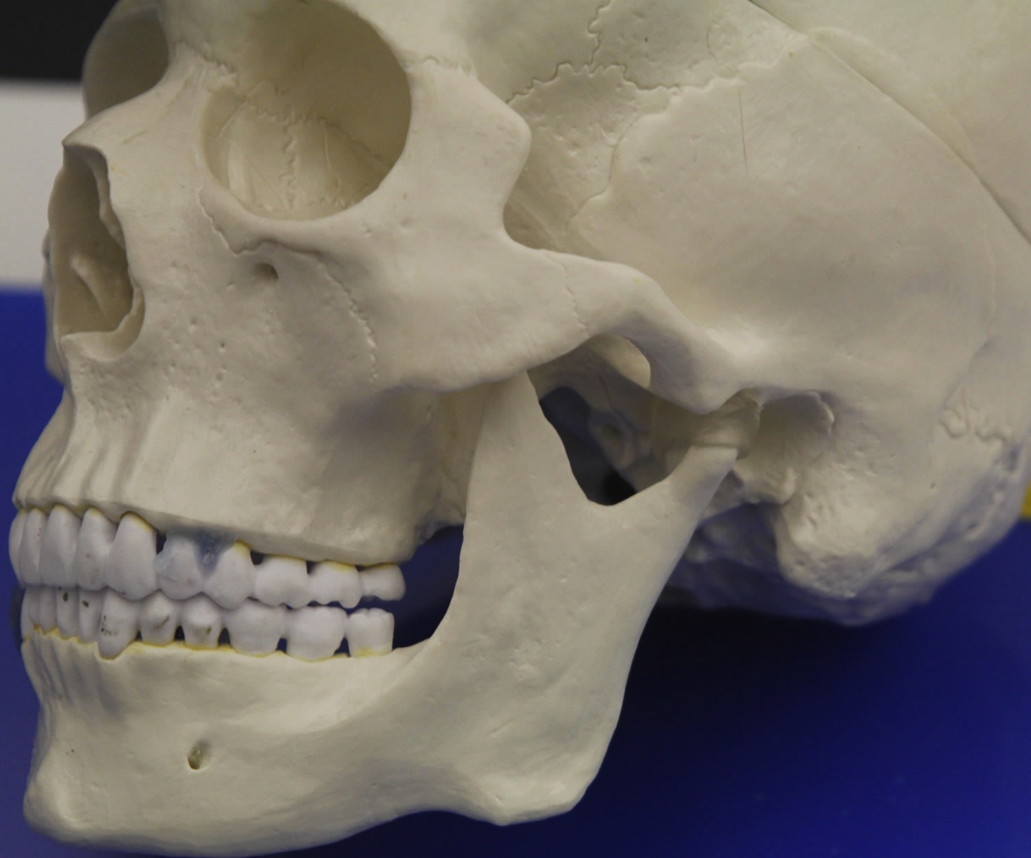 This is a model of the temporomandibular joint.